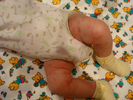 Чем мазать дерматит беременных 74